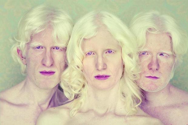 PHotoEspaña 2014 – Albinos, fotografía de Gustavo Lacerda