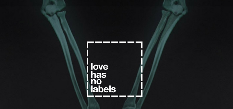 Love Has No Labels, la radiografía del amor en estado puro