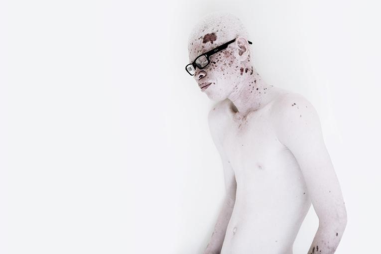 albinismo y concienciación