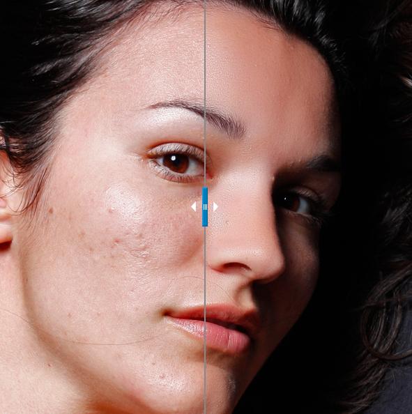 Portraiture, plug para suavizar y eliminar imperfecciones en los retratos